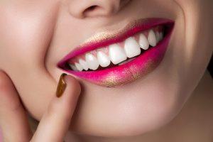 Veneers - Bright Star Sapphire Dental